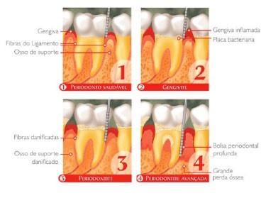 Estágios da doença periodontal